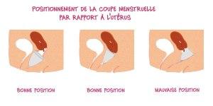 coupe-menstruelle-col-uterus